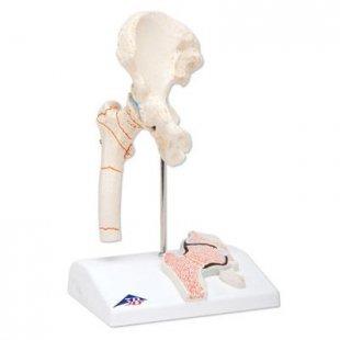3B Scientific Modell Oberschenkelbruch und Hüftgelenkverschleiß